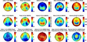 MBSR EEG EKG 2 Gao